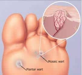 Wart on foot cut out